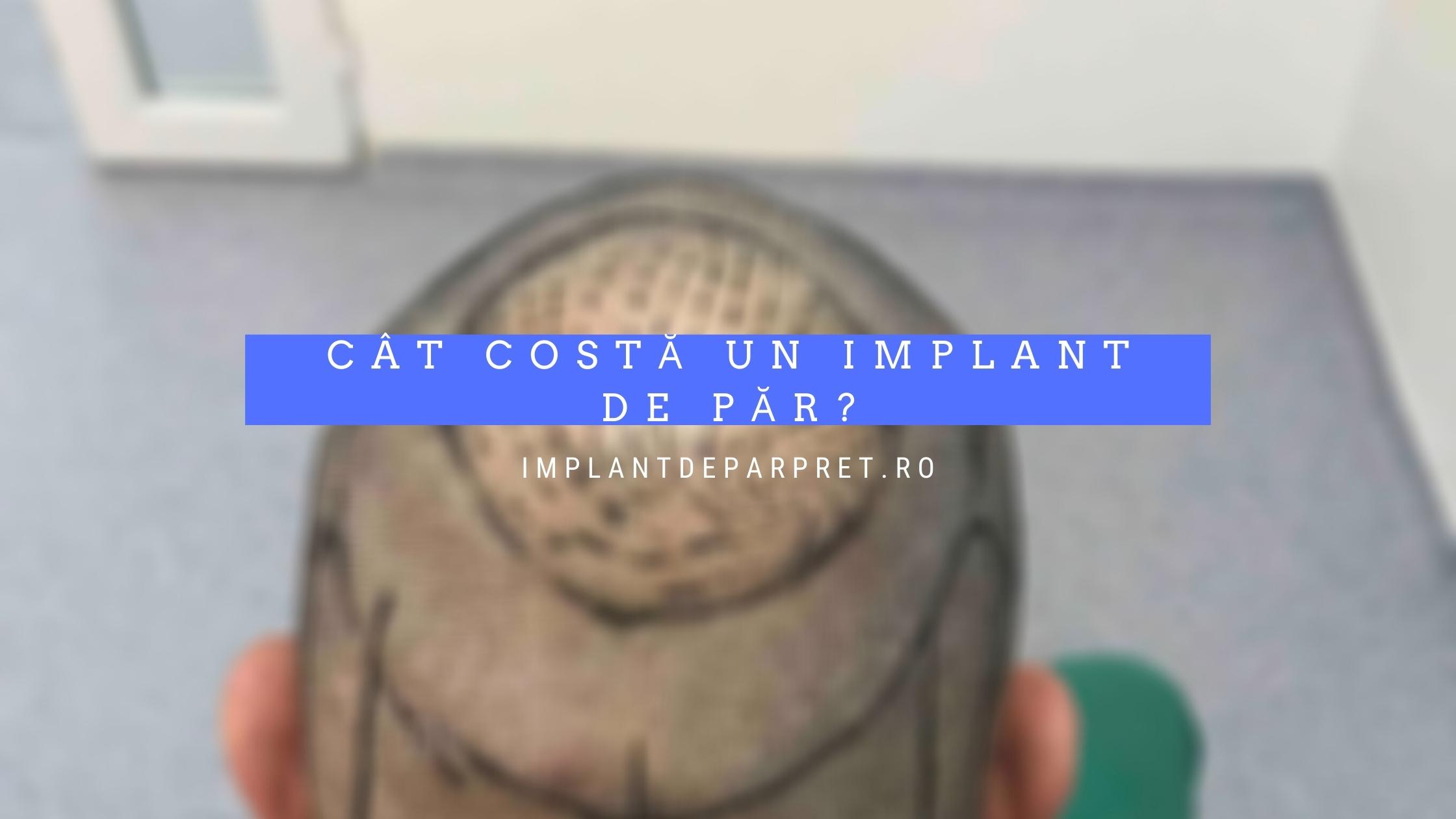 cat costa un implant de par