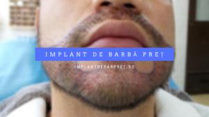 implant de barba pret