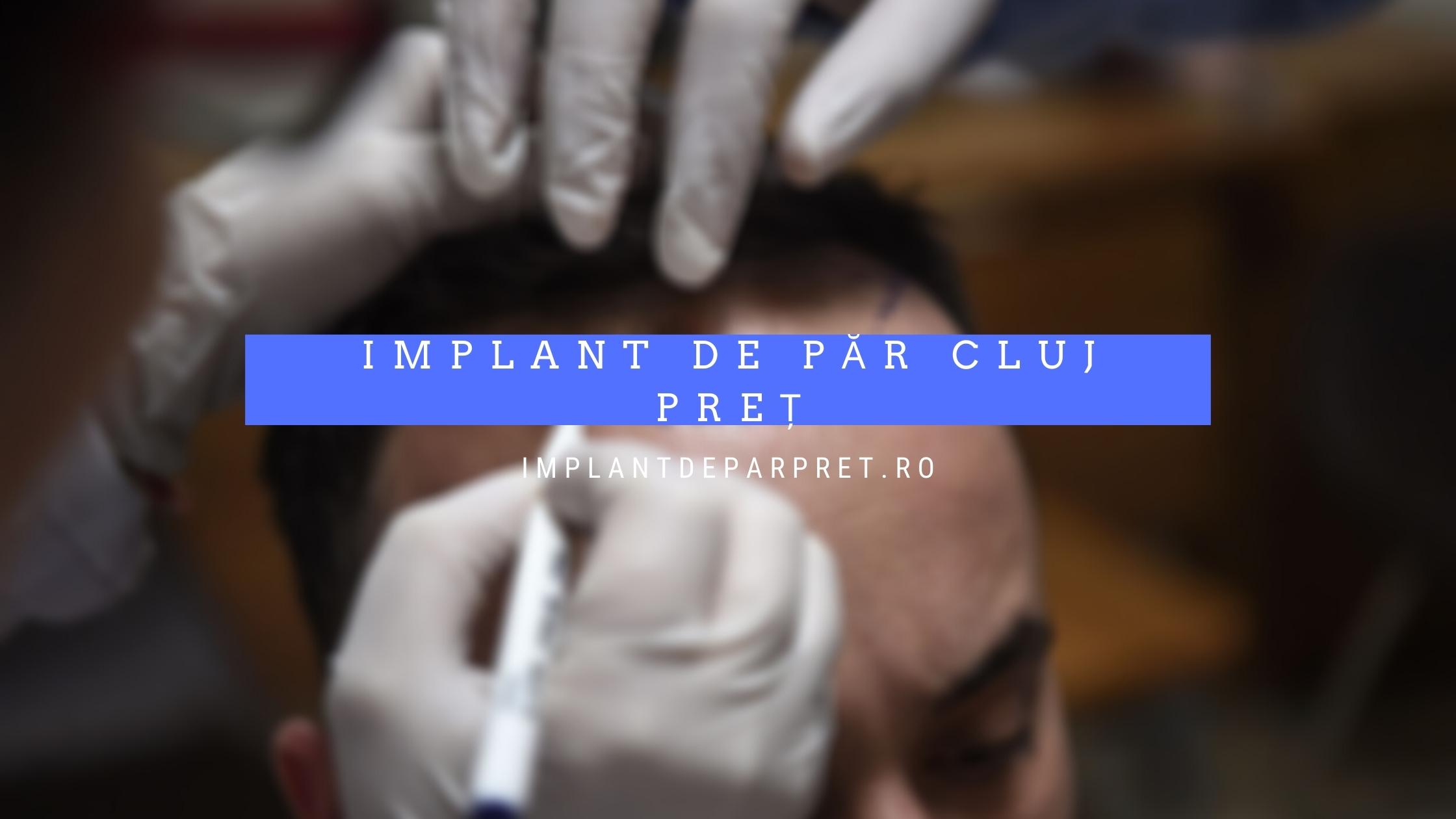 implant de par cluj pret