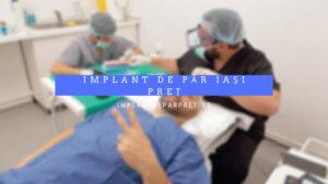 implant de par iasi pret