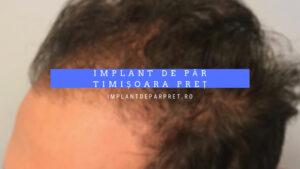 implant de par timisoara pret